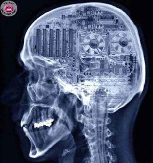 Carte-mère dans la boîte crânienne dévoilée aux rayons X
