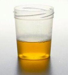 Flacon en plastique contenant de l'urine