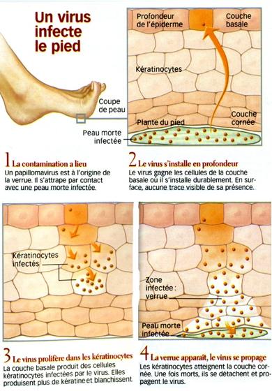 Infection du pied par un virus : les différentes étapes de la contamination