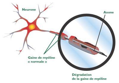 Schéma de la dégradation de la gaine de myéline