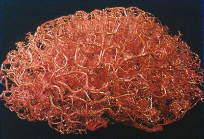 Vaisseaux sanguins du cerveau
