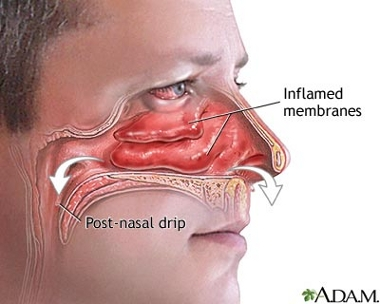 Inflammation des cornets nasaux