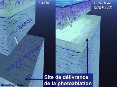Localisation de la photoablation pour le LASIK et le laser de surface
