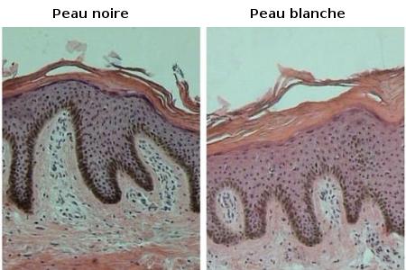Répartition des mélanocytes et type de peau