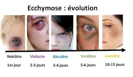 Évolution de l'ecchymose