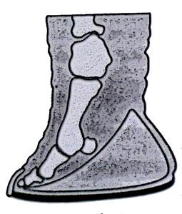 Anatomie de la patte d'un éléphant